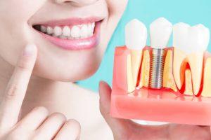 Dental Implant Bone