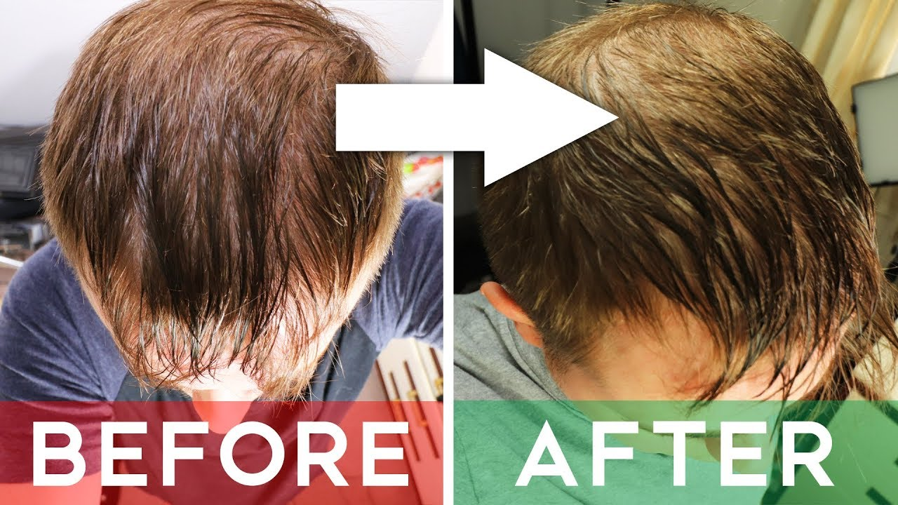 Use Finasterid - Get Your Hair Back