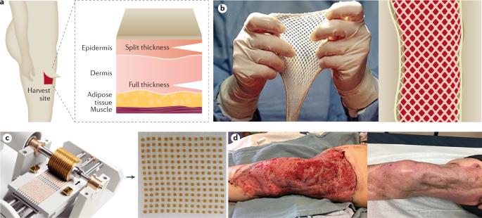 Medical Technology Advances for Burn Treatment
