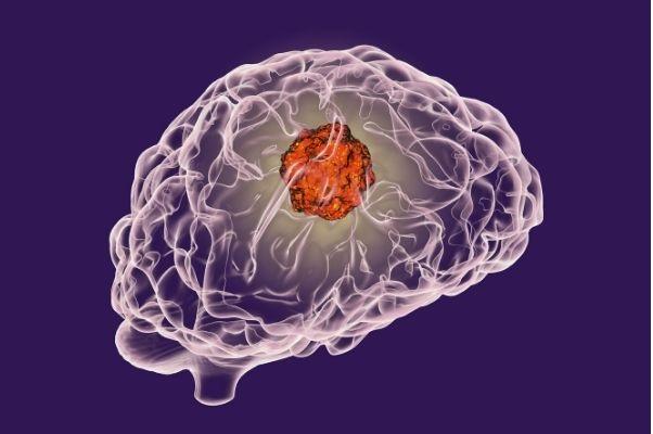 Post Brain Tumour Treatment Challenges