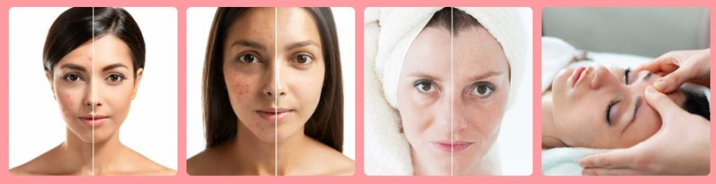 best acne treatment in Dubai at Mirrors Beauty Lounge